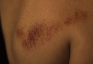 gua sha, bruising, oriental, medicine, treatment